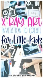 X-Ray Process Art for Kids